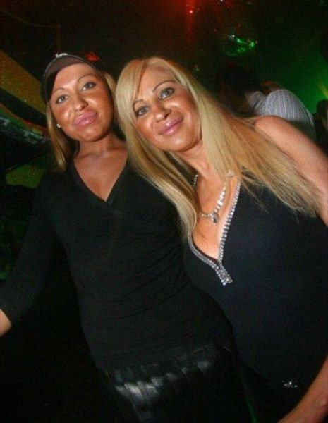 More-plastic-surgery-disasters14