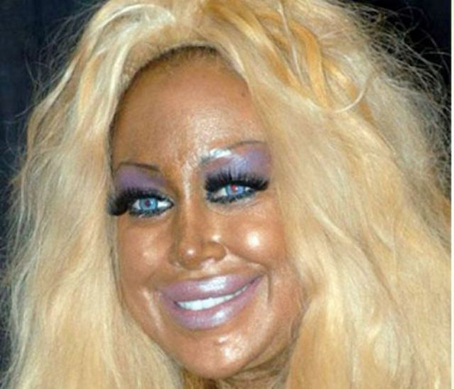 More-plastic-surgery-disasters20