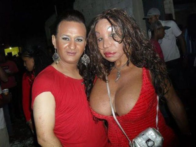 More-plastic-surgery-disasters22