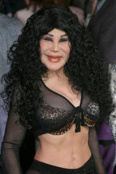 More-plastic-surgery-disasters3