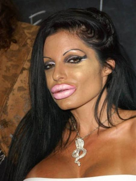 More-plastic-surgery-disasters5